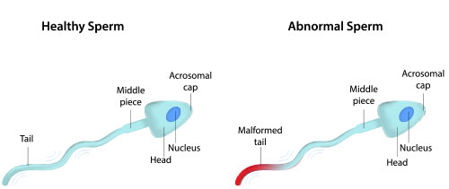 andrology and male infertility